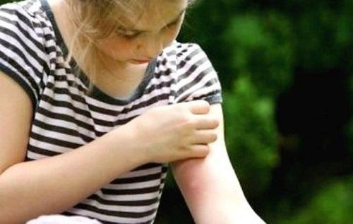zanzare-repellente-